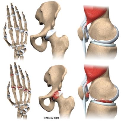 arthritis osteo arthritisgrp 1